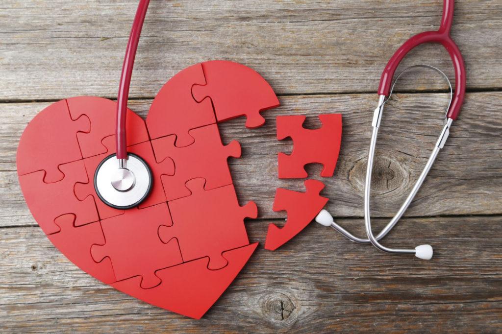 artēriju ārstēšana