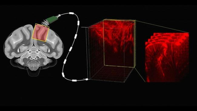 smadzeņu datora interfeiss spēj lasīt domas